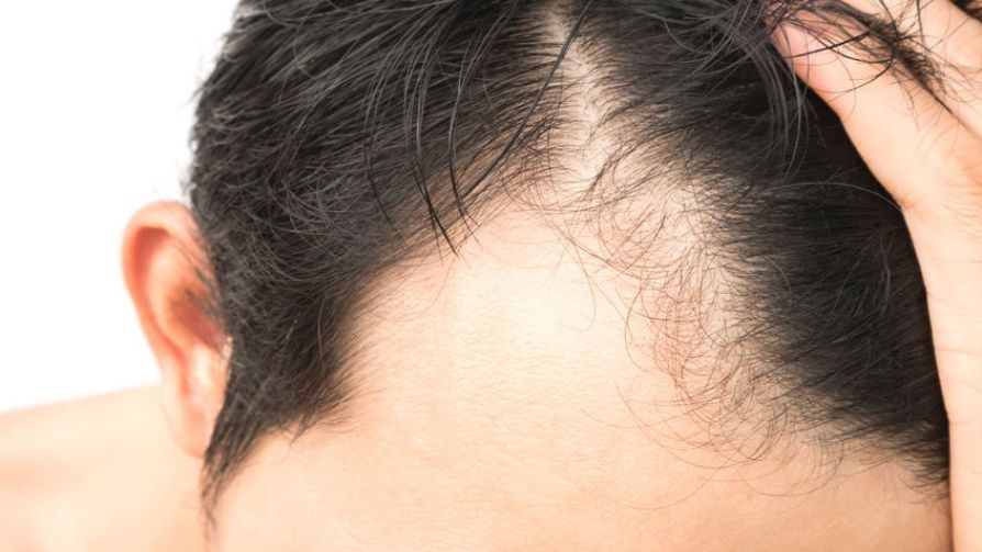 new-baldness-cure-may-be-coming