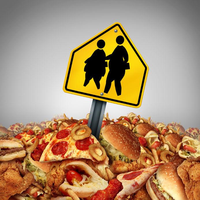 Obese-children